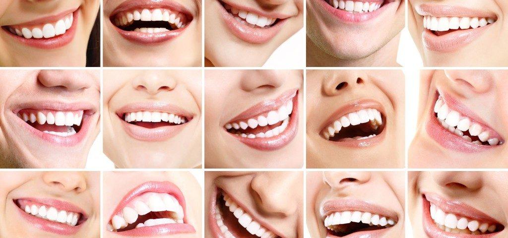 Фото передних зубов с коронками