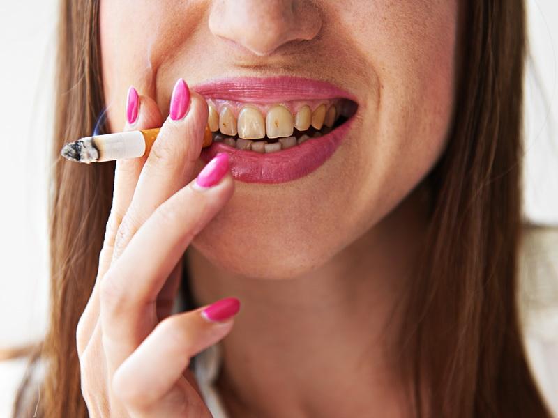 Плохие зубы от курения