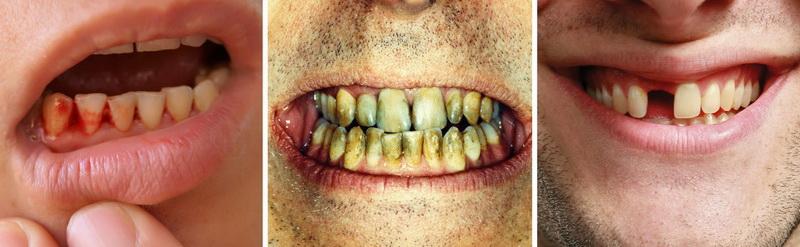 bad-teeth4